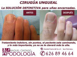 cirugía ungueal